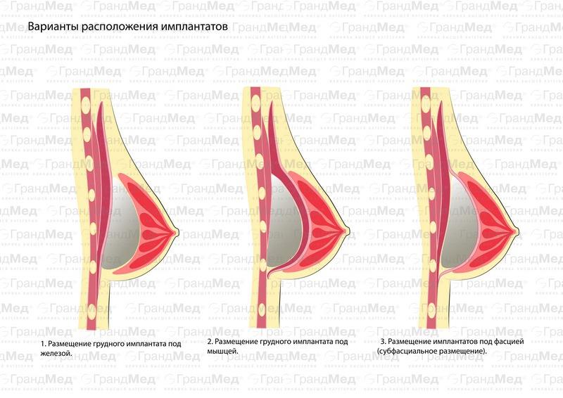 Способы установки грудных имплантов