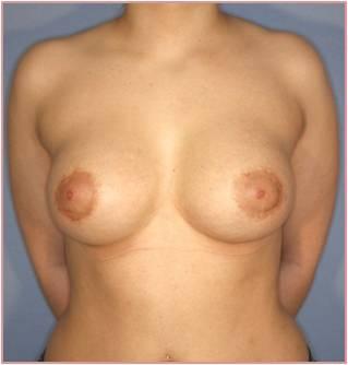 Увеличила грудь на два размера без операции