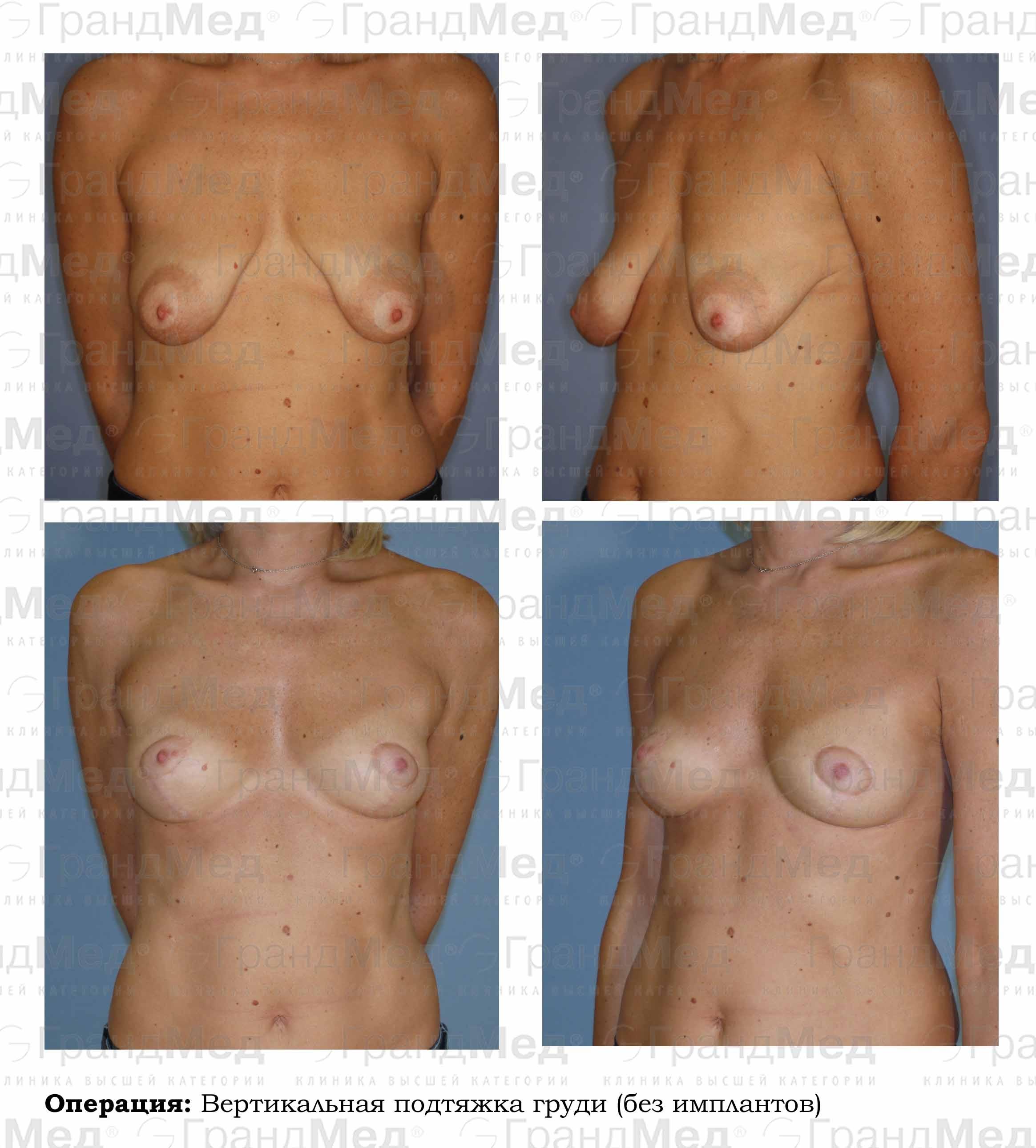 Вакуумный массаже для увеличения груди